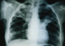 La région de Dakar concentre 45% des cas de tuberculose (responsable)