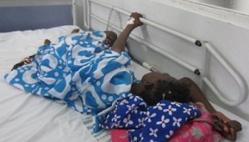 13 166 malades de la tuberculose enregistrés au Sénégal en 2016