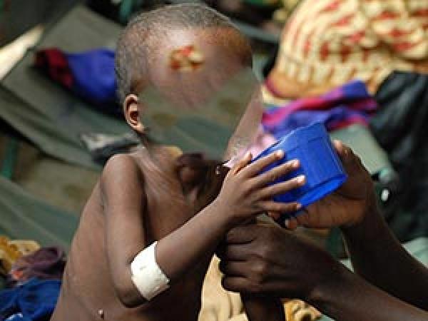 Malnutrition : Saint-Louis, l'une des régions les plus touchées
