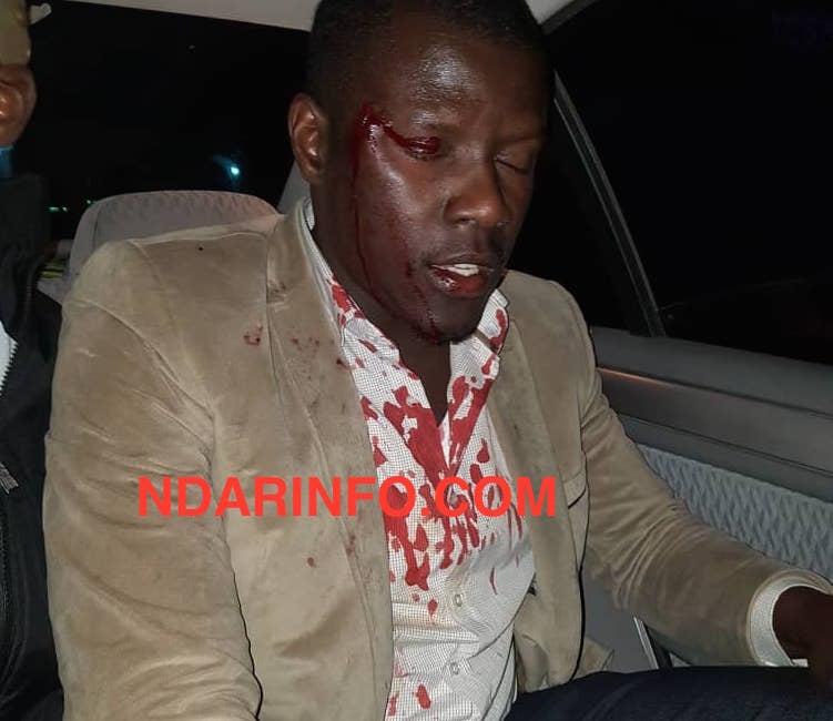 Saint-Louis : Une caravane de PASTEF attaquée. Quatre personnes blessées. Les « marrons du feu » indexés (images choquantes  )
