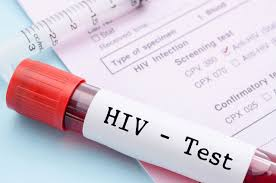 """Sénégal : """"la prévalence du VIH/SIDA est en train de baisser"""""""