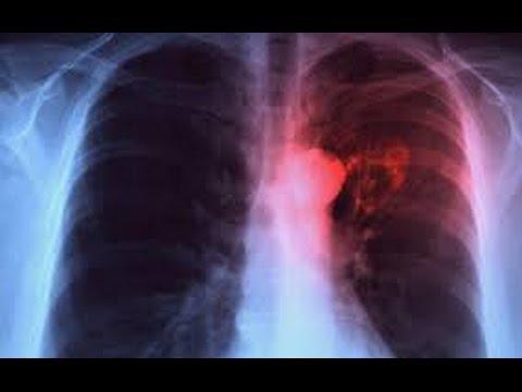 Tuberculose : Plus de 200 nouveaux cas détectés à Kaffrine