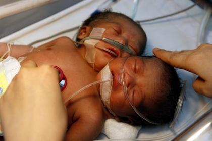Boghé: Une sénégalaise accouche d'un enfant à deux têtes