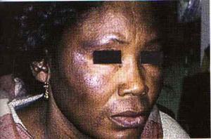 Le ''Xessal'' ou la dépigmentation des femmes sénégalaises: Quels sont les dangers de cette pratique ?