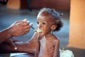 Saint-Louis: Un projet de Plan Sénégal s'engage contre la malnutrition sévère.