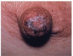 Contre le cancer du sein, mangez des champignons et buvez du thé !