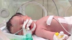 VIDEO - Miracle de la vie à Gaza: un bébé naît 10 minutes après le décès de sa mère