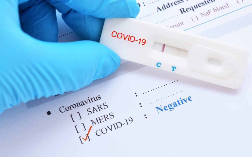 Covid 19 : 37 nouveaux cas positifs, 1 importé, 42 patients guéris, 40 cas graves, 4 nouveaux décès…