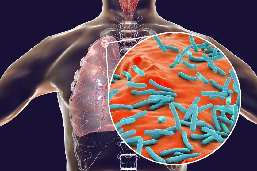Tuberculose: Avec 420 morts en 2020, un tueur plus insidieux que la Covid-19, 2000 malades dans la nature