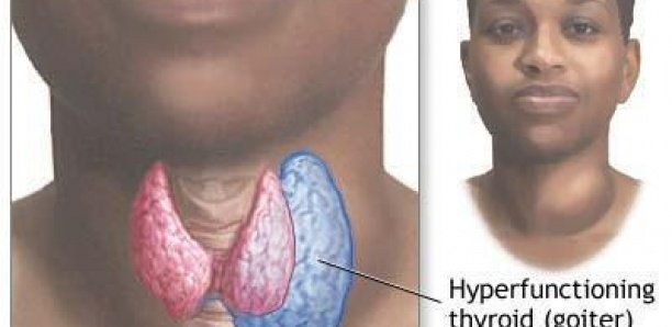 Plus de 70% des Sénégalais souffrent des maladies thyroïdiennes