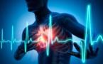 Maladies cardiaques: pourquoi le fléau s'amplifie à Saint-Louis