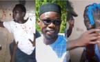 Sonko et Cie attaqués à Ziguinchor : Un responsable de Pastef poignardé. La liste des victimes connue