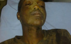 UGB – Le renouvellement de déléguès de la COMSOC dégénère : un étudiant blessé, évacué à l'hôpital de Saint-Louis.