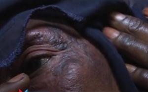 Saint-Louis - Dépigmentation : les folles pratiques des Femmes ... (vidéo)