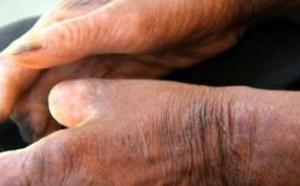 Santé – 200 nouveaux cas de lèpre diagnostiqués en 2015 au Sénégal