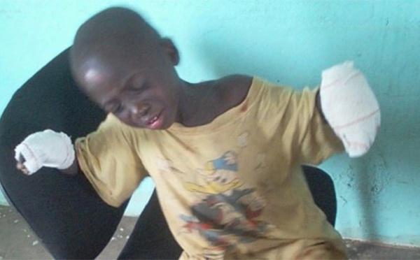 Un père brûle les mains de son fils pour un vol de 350 FCFA à Vavoua
