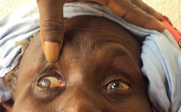 165 mille aveugles et 550 mille malvoyants au Sénégal