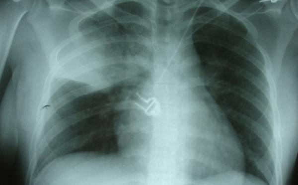 SANTE: Lancement d'un nouveau vaccin contre la pneumonie