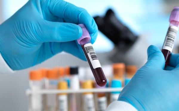 COVID-19 : 41 nouvelles contaminations, 4 décès enregistrés