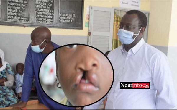 Santé infantile : de la chirurgie gratuite pour plus de 100 mômes de la Langue de Barbarie (vidéo)
